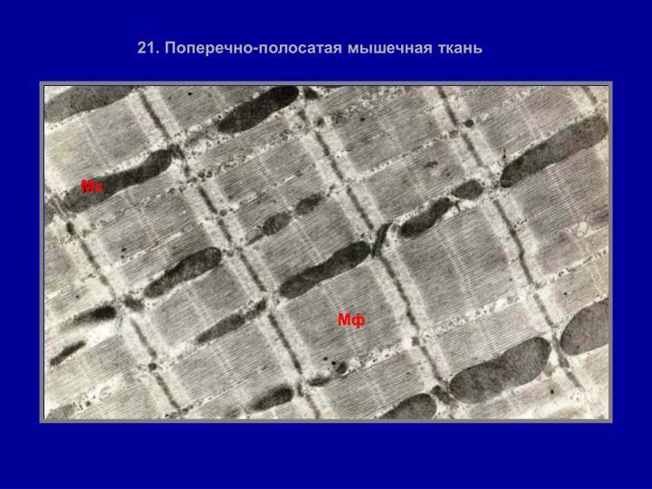 21. Поперечно-полосатая мышечная ткань