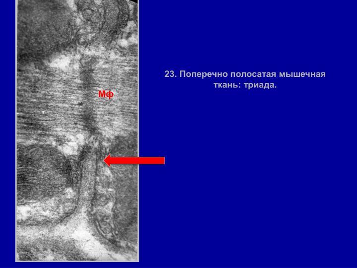 23. Поперечно полосатая мышечная ткань: триада.