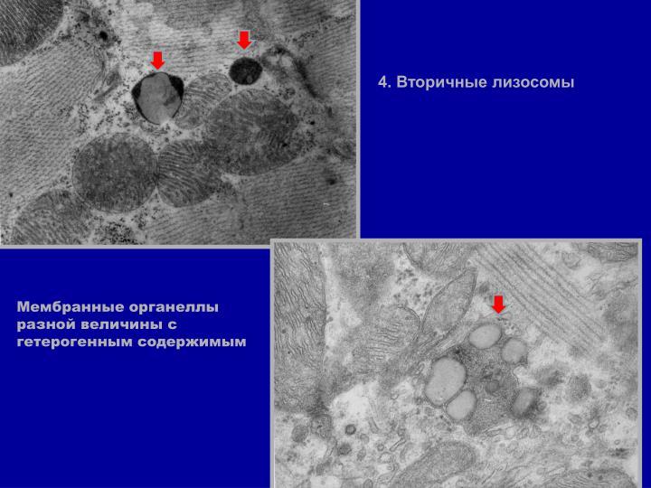 4. Вторичные лизосомы