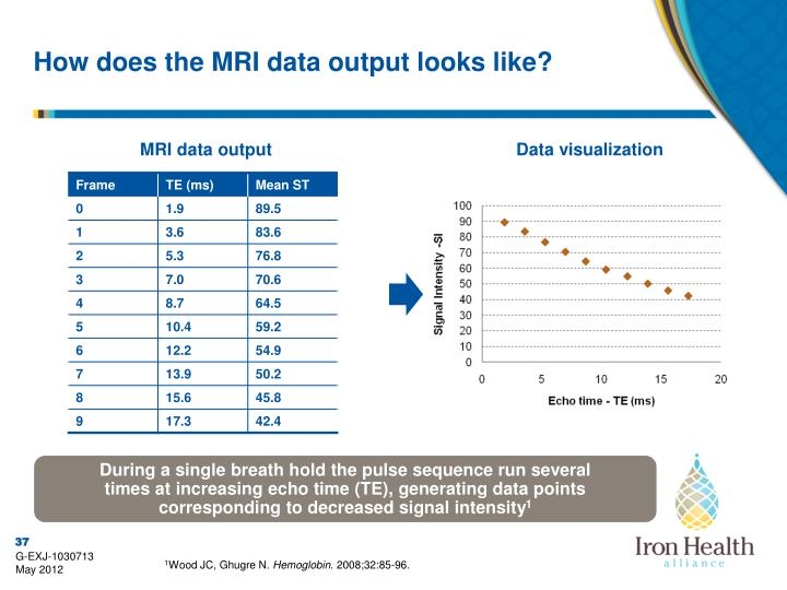 How does the MRI data output looks like?