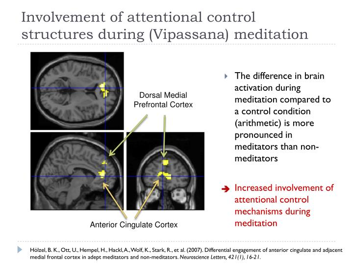 Dorsal Medial Prefrontal Cortex
