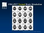 fdg pet normal brain metabolism