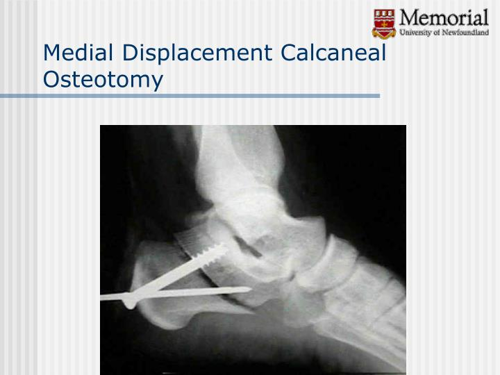 Medial Displacement Calcaneal Osteotomy