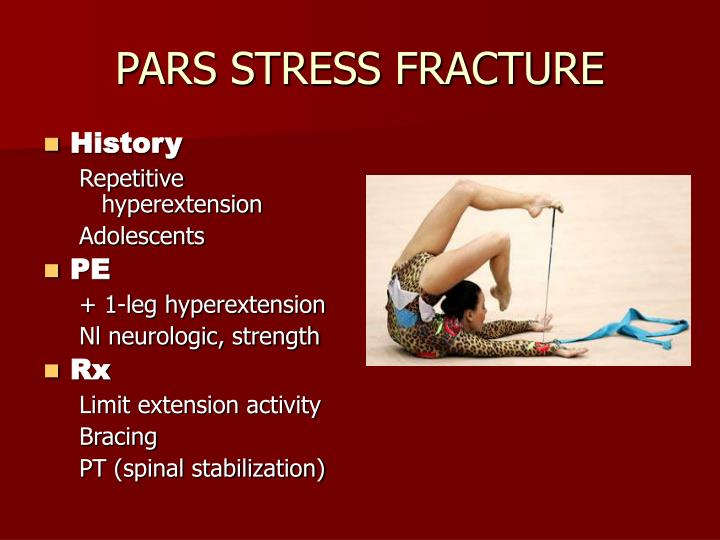 PARS STRESS FRACTURE