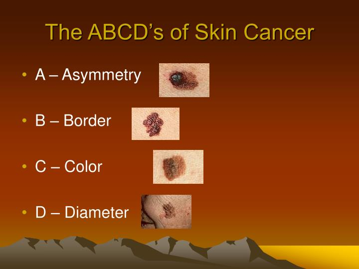 The ABCD's of Skin Cancer