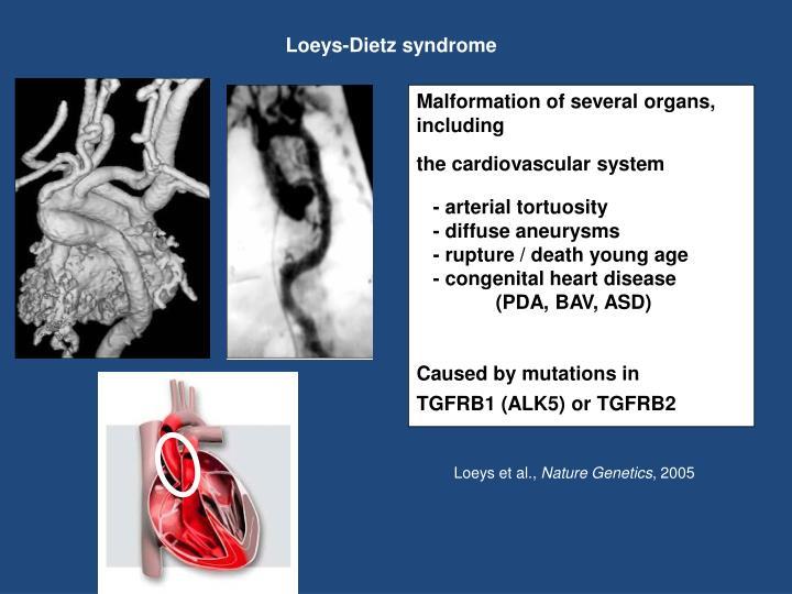 Loeys-Dietz syndrome