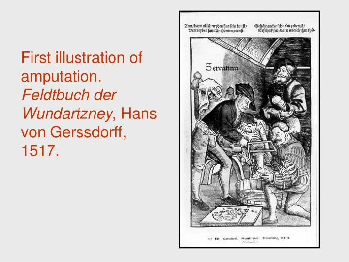 First illustration of amputation.