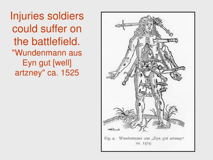 Injuries soldiers could suffer on the battlefield.