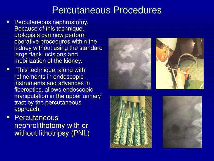 Percutaneous Procedures