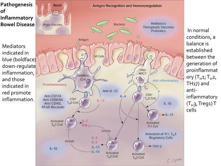 Pathogenesis of Inflammatory Bowel Disease