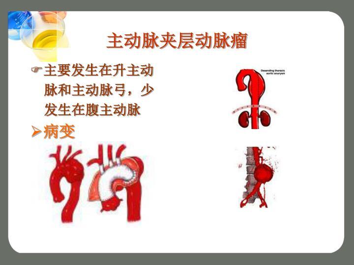 主动脉夹层动脉瘤