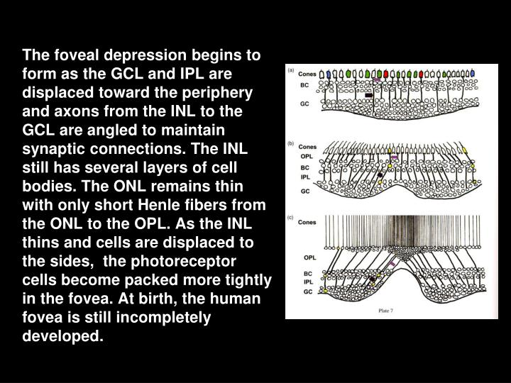 The foveal depression begins to form as the GCL and IPL are displaced toward the periphery and axons from the INL to the GCL are angled to maintain synaptic connections. The INL still has several layers of cell bodies. The ONL remains thin with only short Henle fibers from the ONL to the OPL. As the INL thins and cells are displaced to the sides,  the photoreceptor cells become packed more tightly in the fovea. At birth, the human fovea is still incompletely developed.