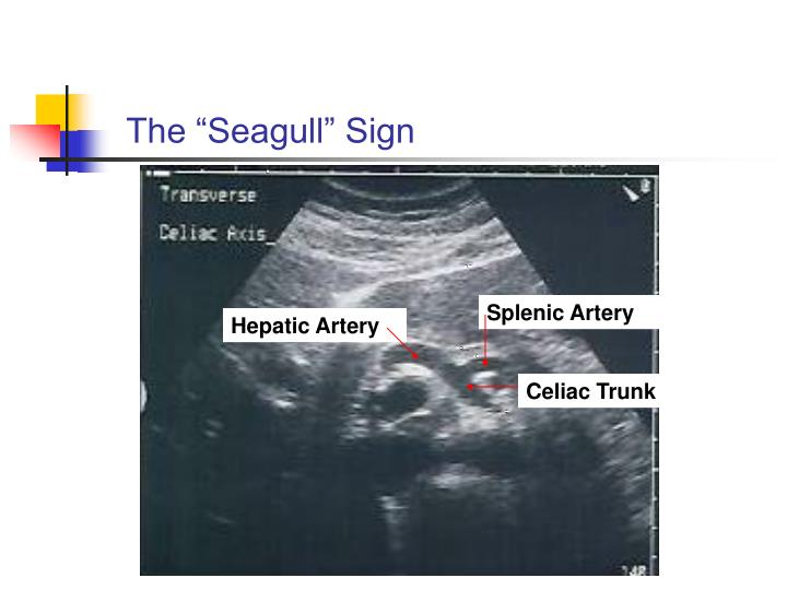 "The ""Seagull"" Sign"