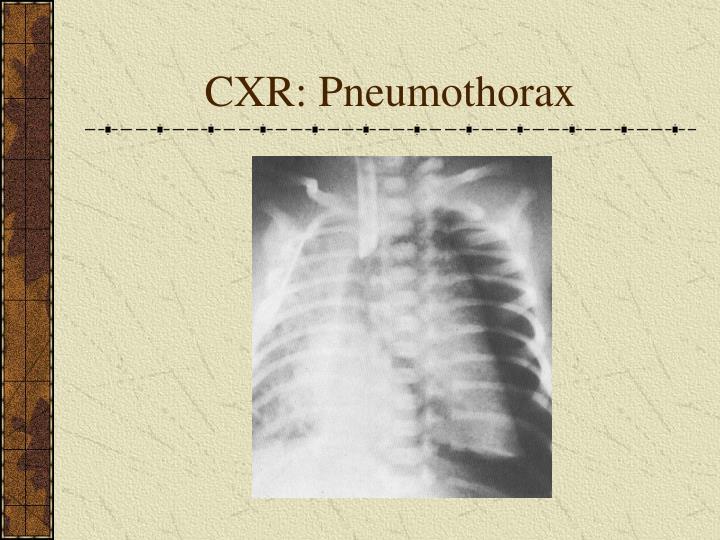 CXR: Pneumothorax