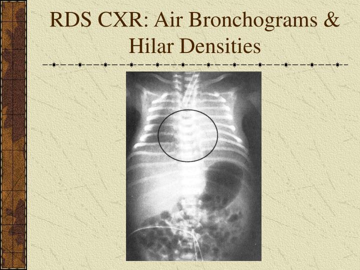 RDS CXR: Air Bronchograms & Hilar Densities
