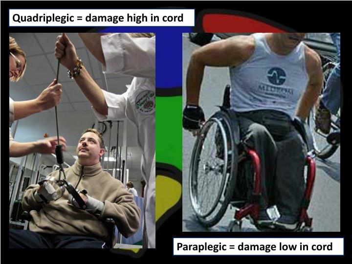 Quadriplegic = damage high in cord