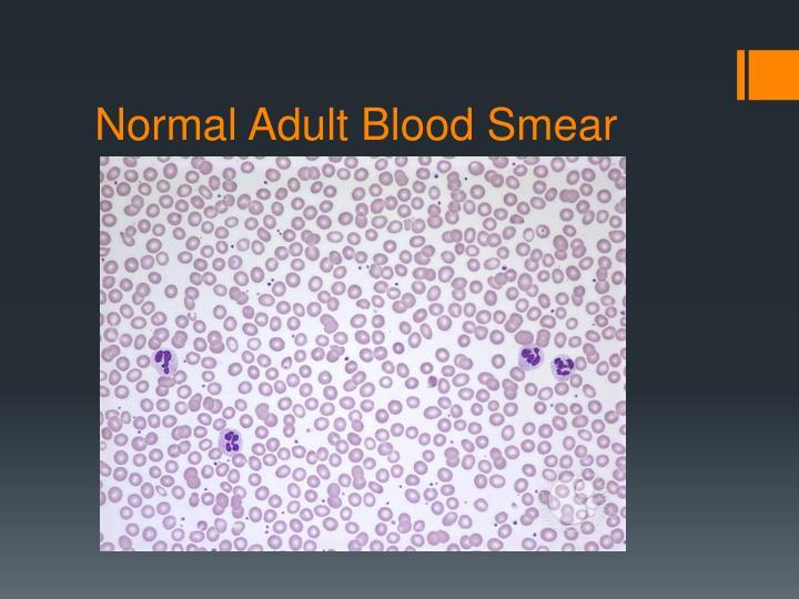 Normal Adult Blood Smear