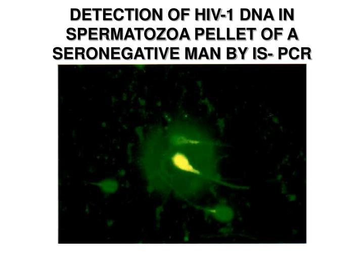 DETECTION OF HIV-1 DNA IN SPERMATOZOA PELLET OF A SERONEGATIVE MAN BY IS- PCR