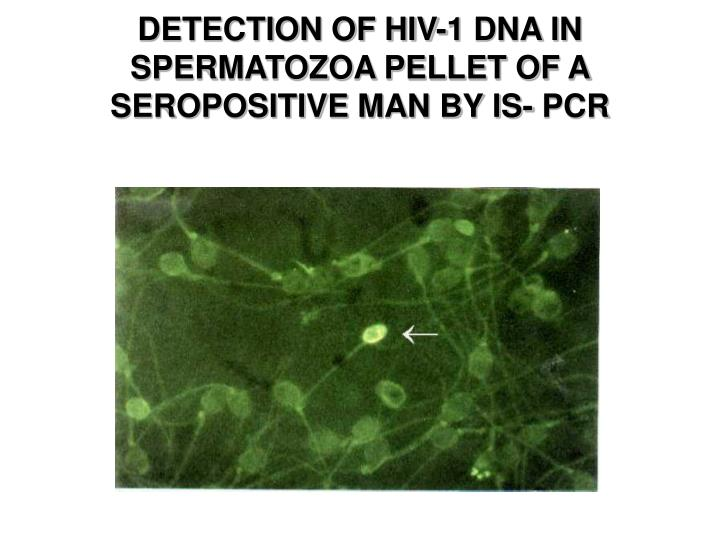 DETECTION OF HIV-1 DNA IN SPERMATOZOA PELLET OF A SEROPOSITIVE MAN BY IS- PCR