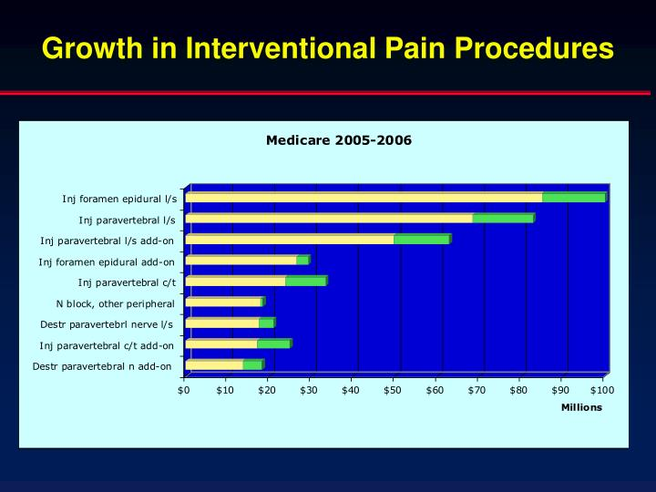 Growth in Interventional Pain Procedures