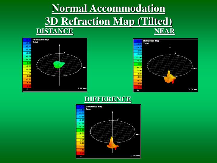 Normal accommodation 3d refraction map tilted
