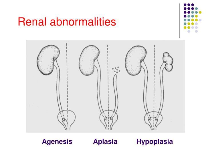 Renal abnormalities