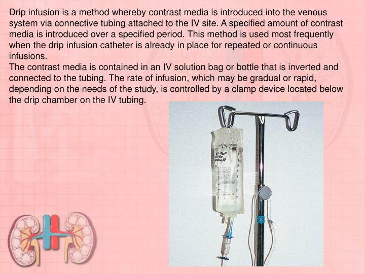 Drip infusion is a method whereby contrast media is introduced into the venous system via connective tubing attached to the IV site. A specified amount of contrast media is introduced over a specified period. This method is used most frequently when the drip infusion catheter is already in place for repeated or continuous infusions.