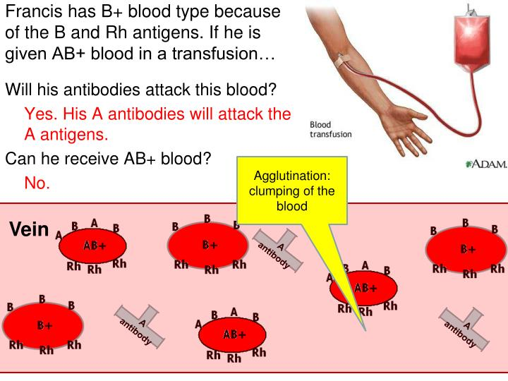 Francis has B+ blood type because of the B and Rh antigens. If he is given AB+ blood in a transfusion…