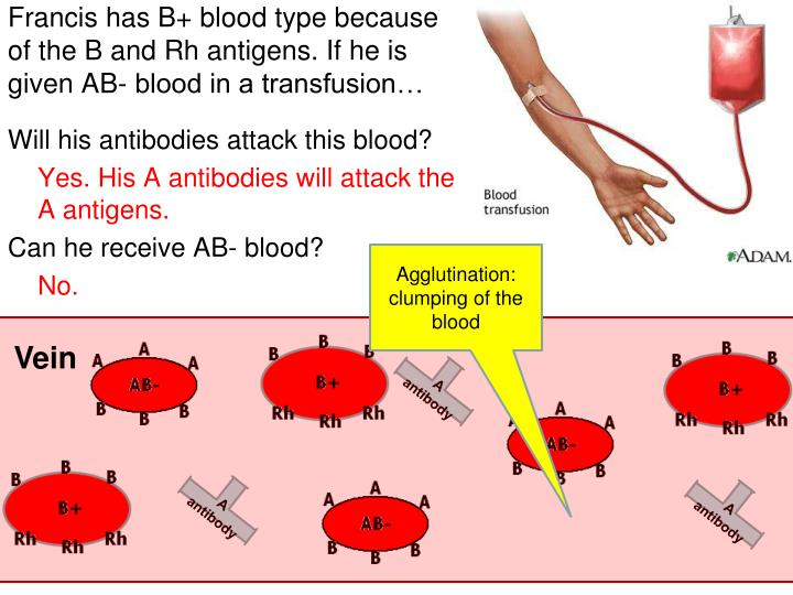 Francis has B+ blood type because of the B and Rh antigens. If he is given AB- blood in a transfusion…