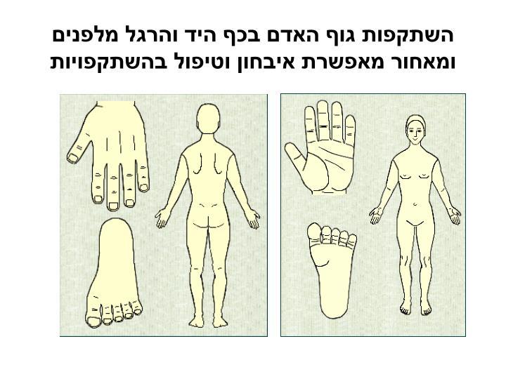 השתקפות גוף האדם בכף היד והרגל מלפנים ומאחור מאפשרת איבחון וטיפול בהשתקפויות