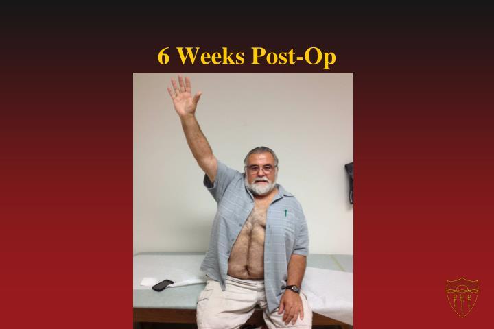 6 Weeks Post-Op