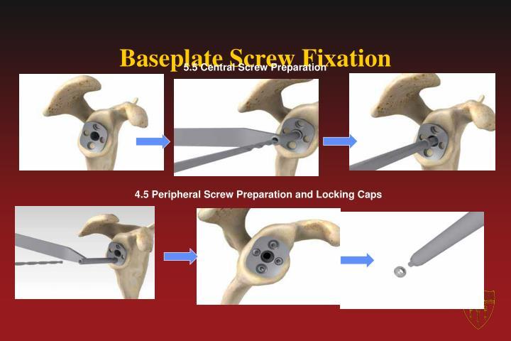 Baseplate Screw Fixation