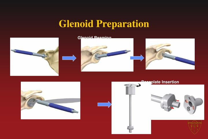 Glenoid Preparation