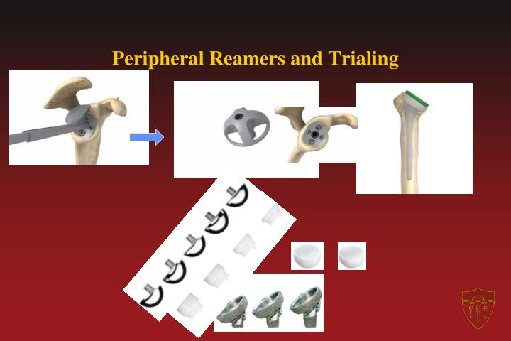 Peripheral Reamers and Trialing