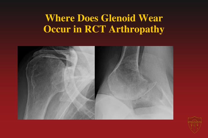 Where Does Glenoid Wear Occur in RCT Arthropathy