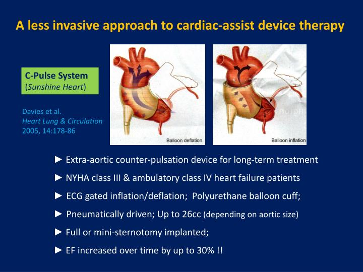 A less invasive approach to cardiac-assist device therapy
