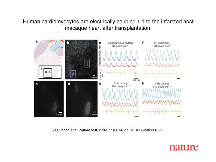 Human cardiomyocytes are electrically coupled 1:1 to the infarcted host macaque heart after transpla...
