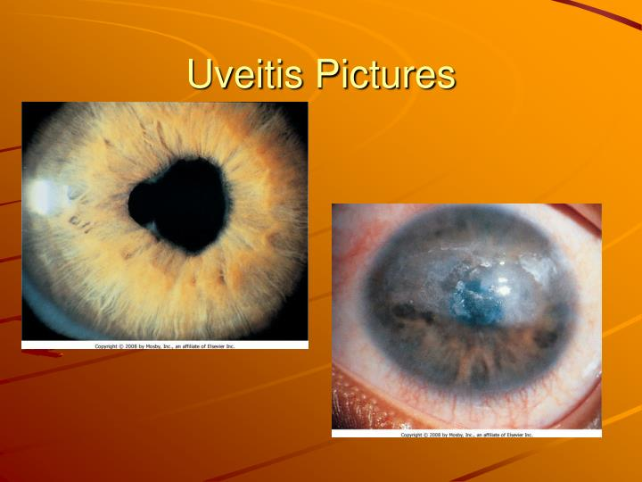 Uveitis Pictures