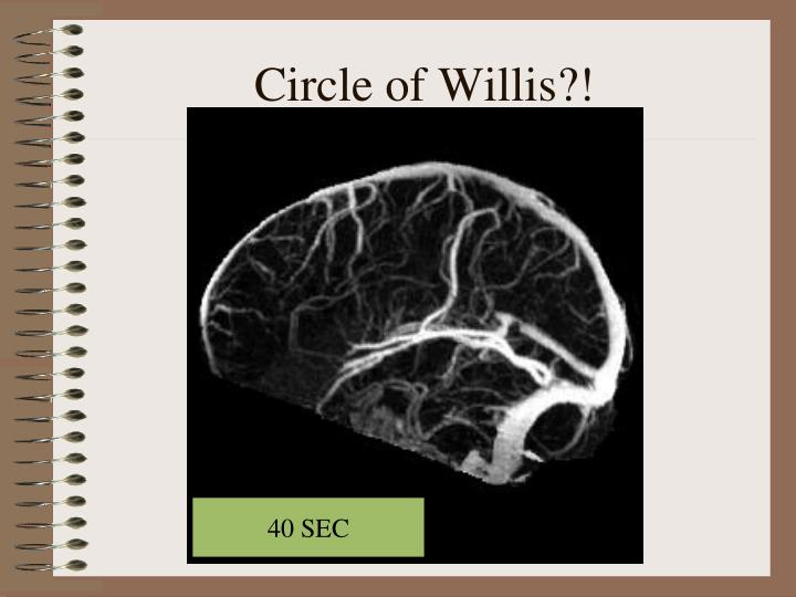 Circle of Willis?!