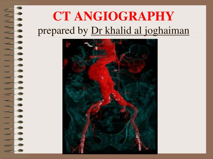 Ct angiography prepared by dr khalid al joghaiman