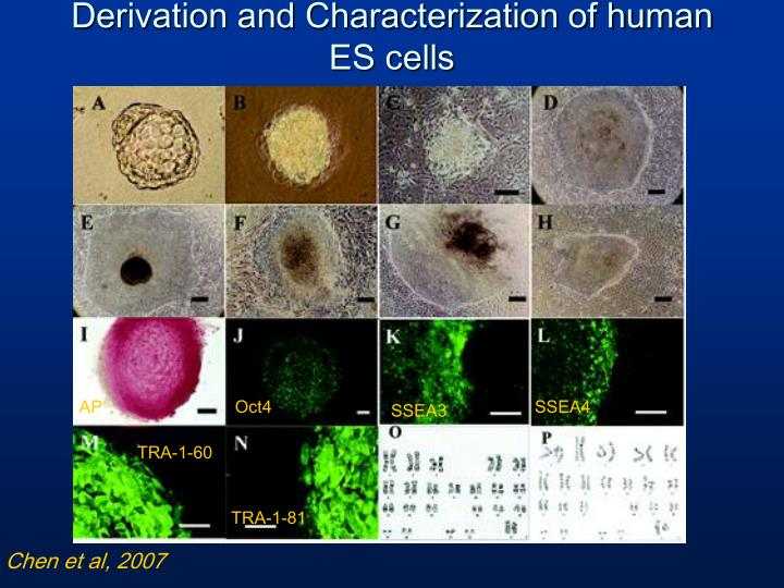 Derivation and Characterization of human ES cells