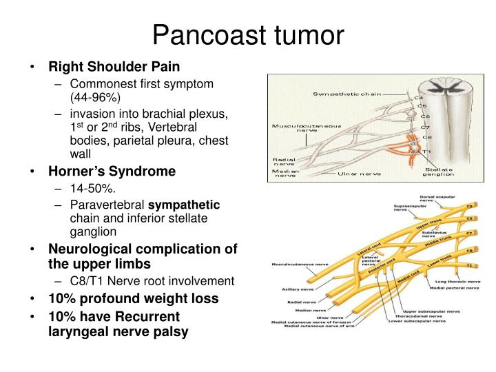 Pancoast tumor