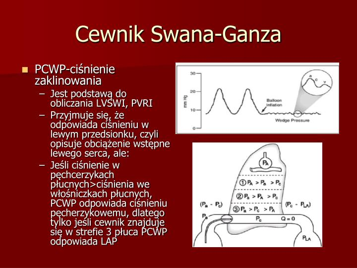 Cewnik Swana-Ganza