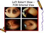 left robert shaw fob internal view