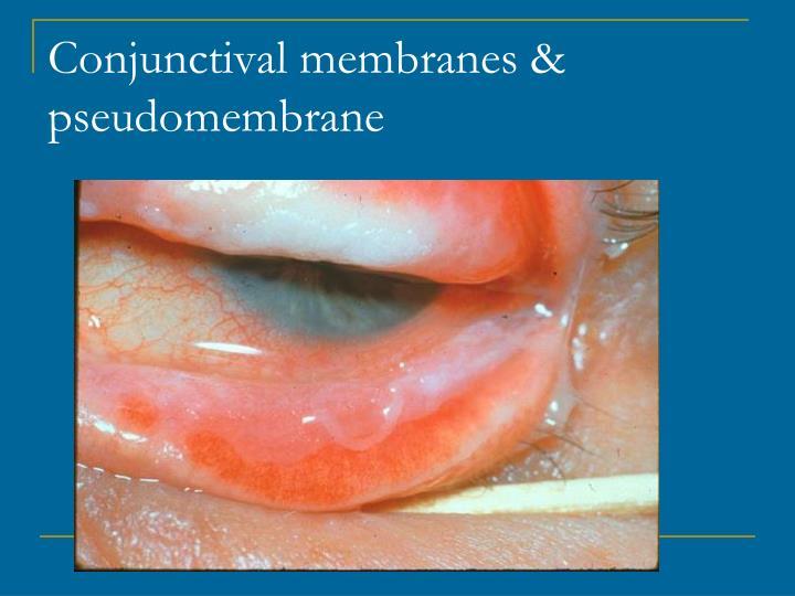 Conjunctival membranes & pseudomembrane