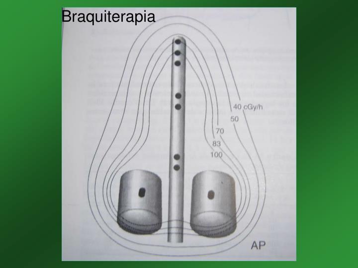 Braquiterapia