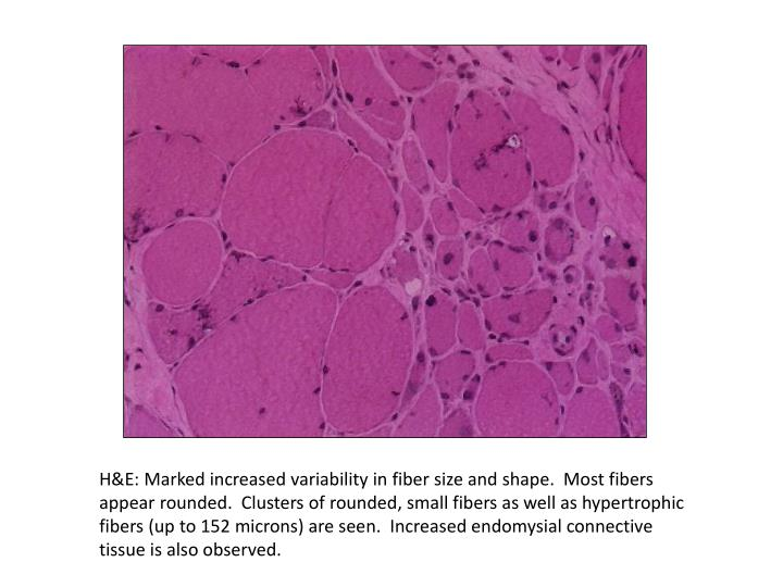 H&E: Marked increased variability in fiber size and shape.  Most fibers appear rounded.  Clusters of rounded, small fibers as well as hypertrophic fibers (up to 152 microns) are seen.  Increased endomysial connective tissue is also observed.