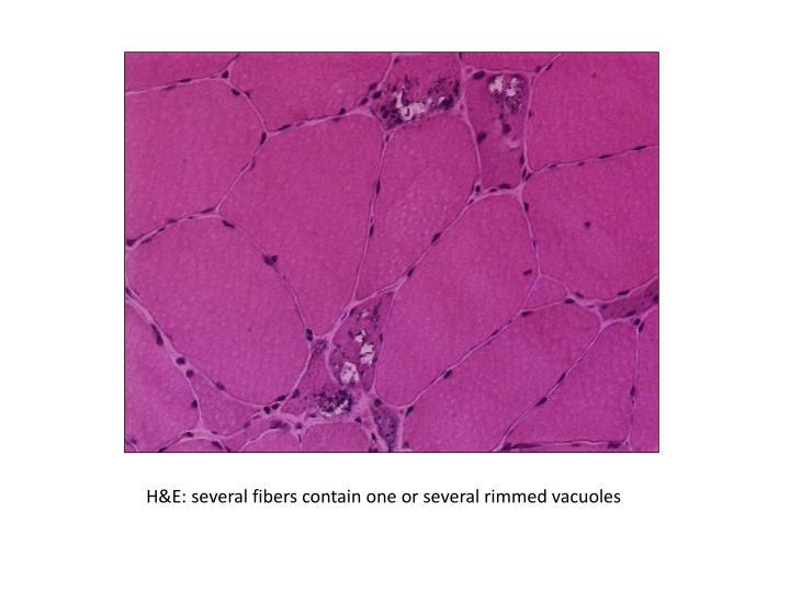 H&E: several fibers contain one or several rimmed vacuoles