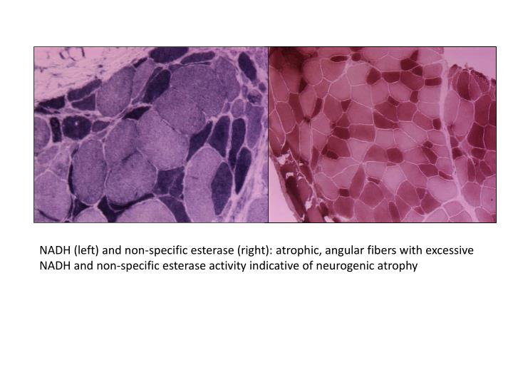 NADH (left) and non-specific esterase (right): atrophic, angular fibers with excessive NADH and non-specific esterase activity indicative of neurogenic atrophy