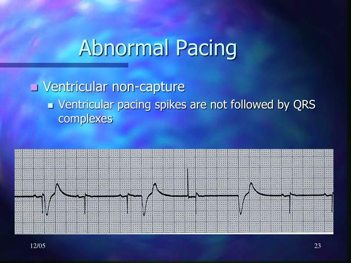 Abnormal Pacing